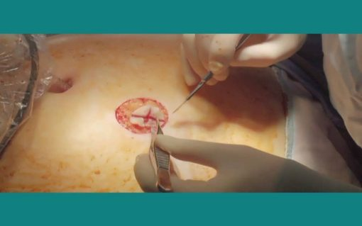 جراحی برای داوطلبان مدرک MRCS - انجمن سلطنتی جراحان انگلستان