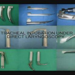 مدیریت جراحی مجرای هوای بسته شده