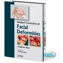 Surgical Correction of Facial Deformities