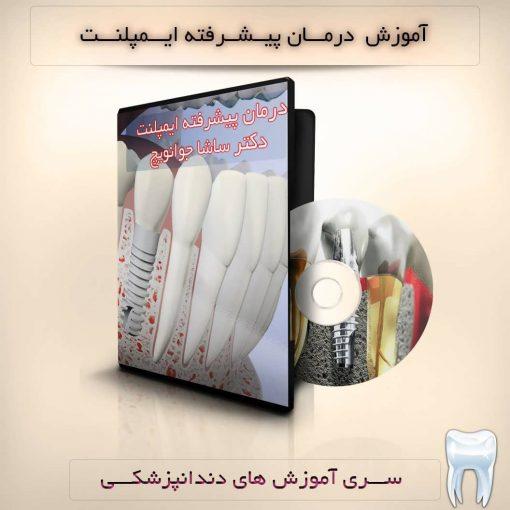 درمان پیشرفته ایمپلنت - دندانپزشکی