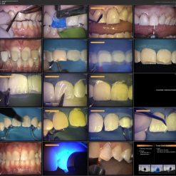 آموزش ترمیم دو لایه دندانی