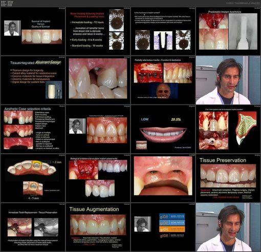 عناصر طبیعی زیبایی در ایمپلنت های دندانی