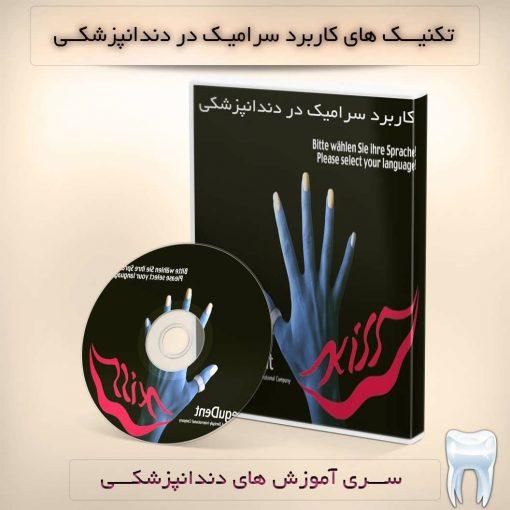 سرامیک دندانی - پرسلن
