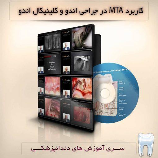 کاربرد MTA در جراحی اندو و کلینیکال اندو