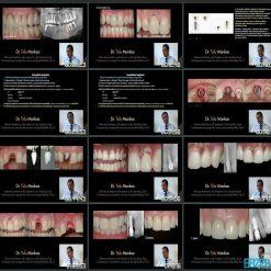 دستیابی به نهایت زیبایی در ایمپلنت ها دندانی