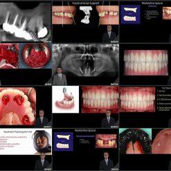 ایمپلنت دندان از تشخیص تا عمل