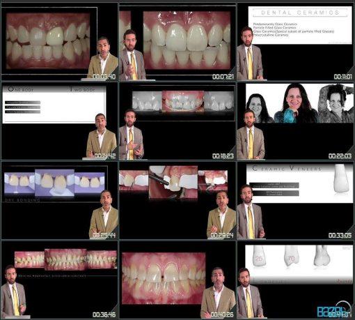 روکش سرامیک دندان - انتخاب صحیح