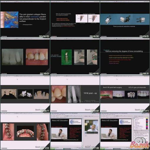 دوره ایمپلنت - فیلم و کتاب ایمپلنت دندانپزشکی