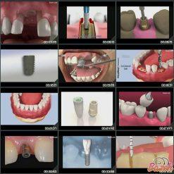 فیلم اتاق انتظار دندانپزشکی - آموزش بیماران