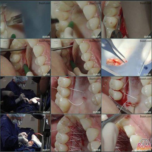 جراحی پلاستیک زیبایی پریو و ایمپلنت